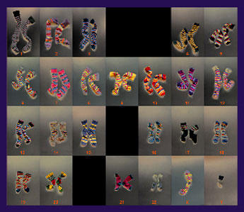 Arranged striped socks to mimic a human karyotype